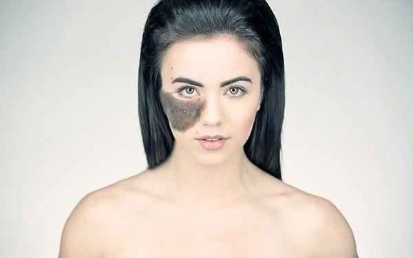 девушка с родимым пятном на лице