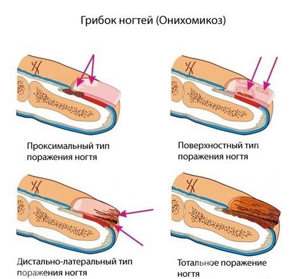 Формы ногтевого микоза