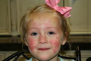 Грибковый дерматит у детей