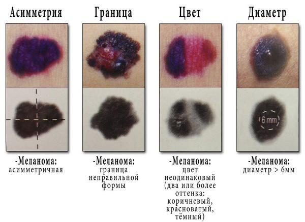 Признаки меланомы