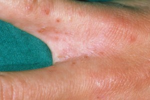 грибок на коже