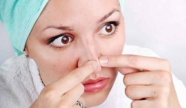 выдавливать угри на носу